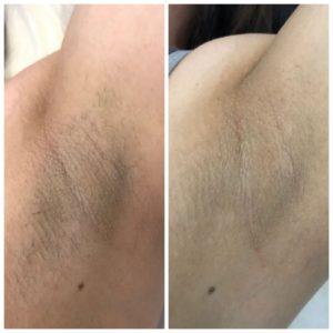 Лазерная эпиляция - фото до и после